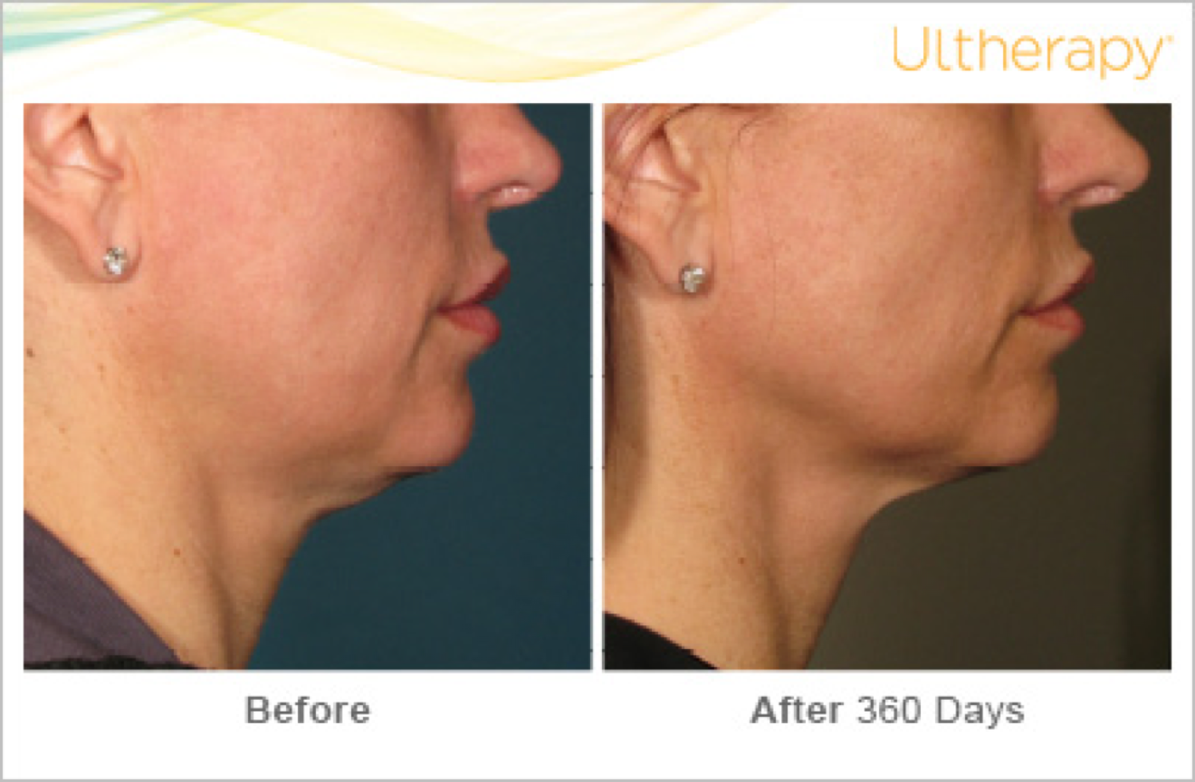 ultherapy before and after 4