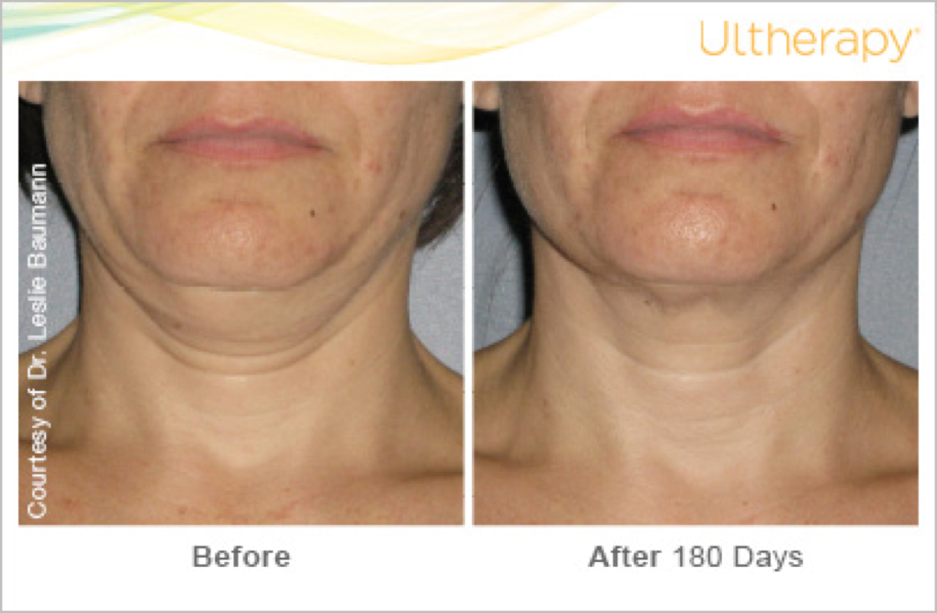 ultherapy before and after5